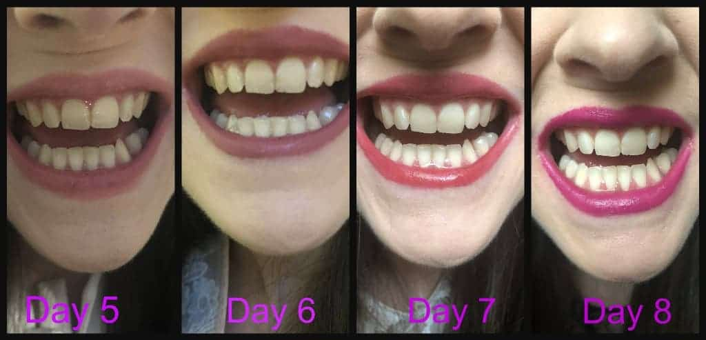 Make A Great First Impression With Snow Teeth Whitening Kit Before